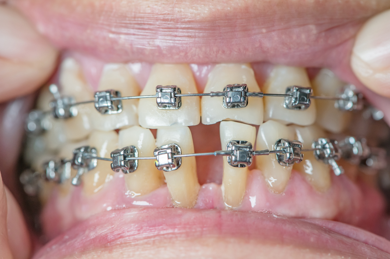 Stained Teeth After Braces