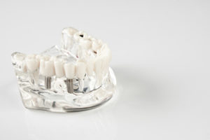 why getting dentures when implants are better