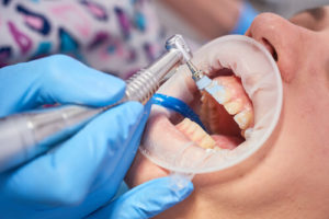 how much does a dental cleaning cost without insurance
