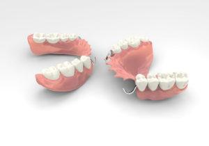 3d dentures cost