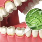 tooth infection spread to brain symptoms