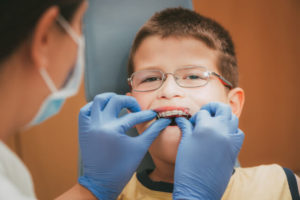 early orthodontic treatment pros and cons